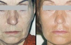 Endoskopowa Face Lift (lifting)